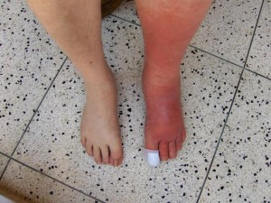 Cellulitis_Left_Leg