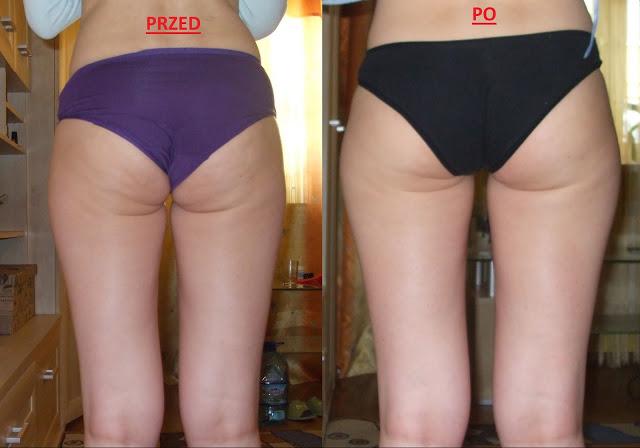Trzy skoncentrowane kosmetyki, które usuwają cellulit
